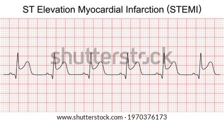 Electrocardiogram show ST elevation myocardial infarction (STEMI) pattern. Heart attack. Ischemic. Coronary artery disease. Angina pectoris. Chest pain. ECG. EKG. Medical health care. Stock photo ©