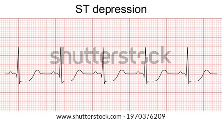 Electrocardiogram show ST segment depression pattern. Heart attack. Ischemic. Coronary artery disease. Angina pectoris. Chest pain. ECG. EKG. Medical health care. Stock photo ©
