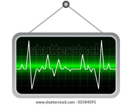 electrocardiogram- vector illustration