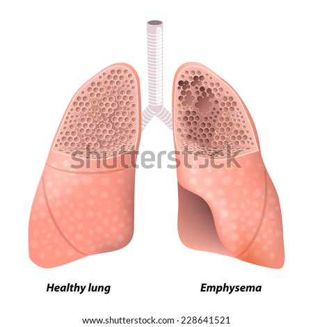 Seenso chronic obstructive pulmonary disease diagram showing a cross section of normal lung and lungs damaged by copd human anatomy ccuart Choice Image