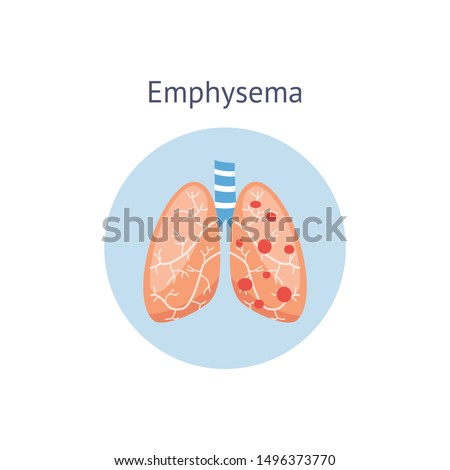 Emphysema chronic obstructive pulmonary disease diagram showing a cross-section of normal lung and lungs damaged by COPD, vector illustration isolated on white background. Stock photo ©