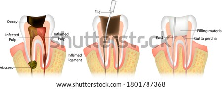 Endodontic root canal treatment process. Dentistry, dental restoration concept. Tooth decay caries disease development Foto stock ©