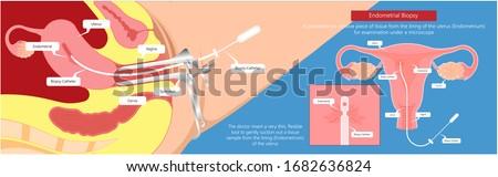 Endometrialbiopsy examination uterus procedure IVF In Vitro Fertilization diagnostic screen acute pelvic inflammation cervix lab check infertility pap smear and vagina D&C