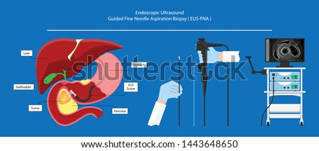 endoscopic ultrasound EUS cancer tumor diagnose FNA abdominal test CT scan MRI colon stomach gastric rectal organs examine rectum Acute abnormal esophageal needle pain ulcer