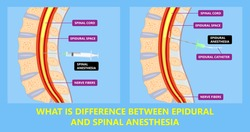 Epidural spinal block anaesthesia Pinched relieve General vaginal medical steroid Natural surgery Walking opioids baby pain back cord birth labor women local spine space relief labour section giving