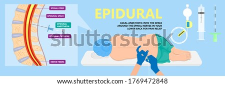 Epidural spinal block anaesthesia Pinched relieve General vaginal medical steroid Natural surgery Walking opioids baby pain back cord birth labor women local spine space relief labour section giving Stock foto ©