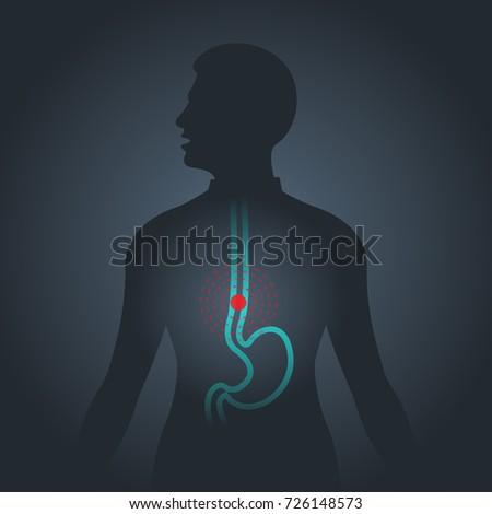 Esophageal Cancer vector logo icon illustration Stock photo ©
