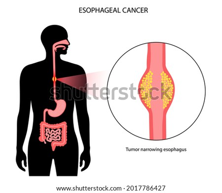 Esophageal carcinoma. Esophagus, intestine and stomach in the male body. Inflammation, pain, tumor in human digestive system. Internal organs exam concept. Oesophagus cancer flat vector illustration Stock photo ©
