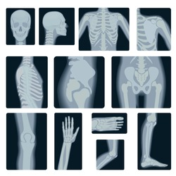 Extreme quality realistic vector collage set of many X-rays shots. X-ray multiple part of adult people