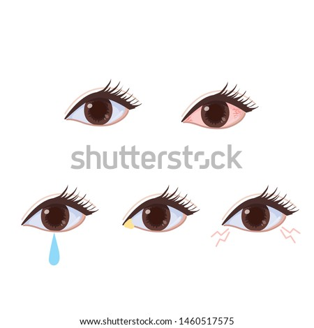 Eye disease Congestion and tears Eyes and eyes Symptoms illustrations