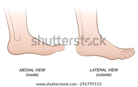 feet   medial view  inside  and