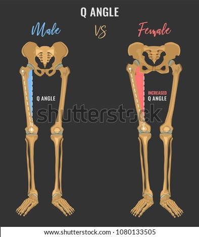 Female and male skeleton differences poster. Q angle in comparison. Major gender nuances. Vector illustration isolated on a dark grey background.