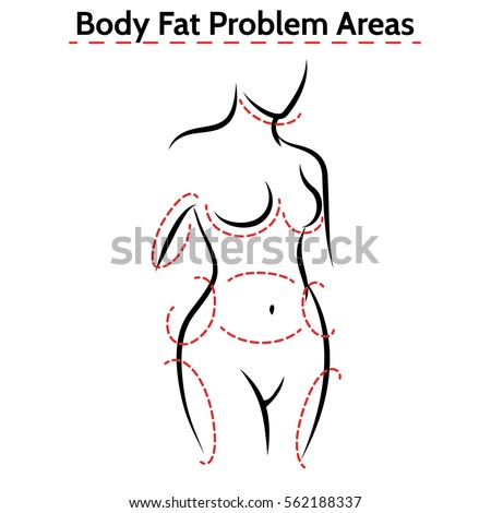 Female body fat problems areas. Vector medical poster with woman silhouette