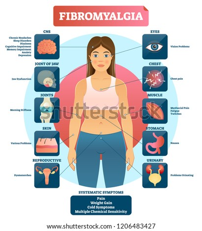 Fibromyalgia vector illustration. Diagnosis symptoms labeled diagram. Problems with jaw, joints, skin, muscle, eyes, urinary and reproductive system. Reason of fatigue.