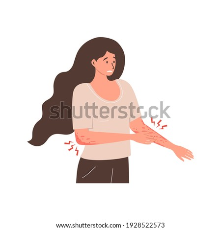 Flat vector illustration of an unhappy suffering woman scratching the skin on her hand. Various skin problems, such as allergies, psoriasis, itching, atopic dermatitis, eczema, dryness, redness.