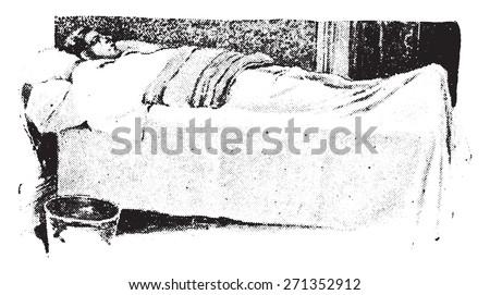 Fomentation, wet flannel covered the dry one, vintage engraved illustration.  #271352912