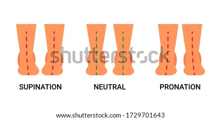Foot deformation, defect, pathologies of foot, flatfoot. Normal human foot and the foot with supination and pronation. Difference between sick and healthy feet. Vector illustration Foto stock ©