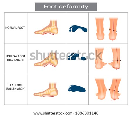 Foot deformation. Types pathologies of foot. Hollow, flat and normal foot. Medical infographic.