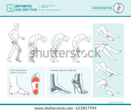 foot pain  leg pain and