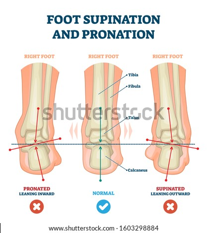 Foot supination and pronation vector illustration. Labeled medical scheme with incorrect leg joint movement. Educational diagram with pronated, normal and supinated compared examples with bone titles. Foto stock ©
