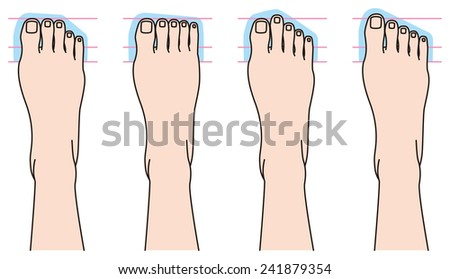 form of toes