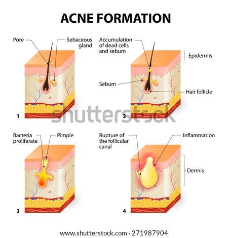 Blind Pimple Diagram - exatin.info   Popped Pimple Diagram