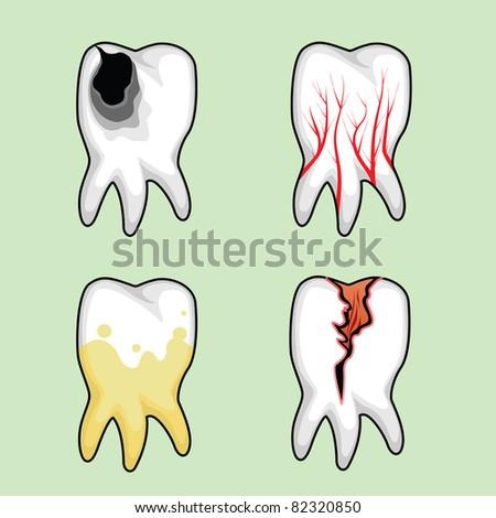 Four teeth affected by various diseases
