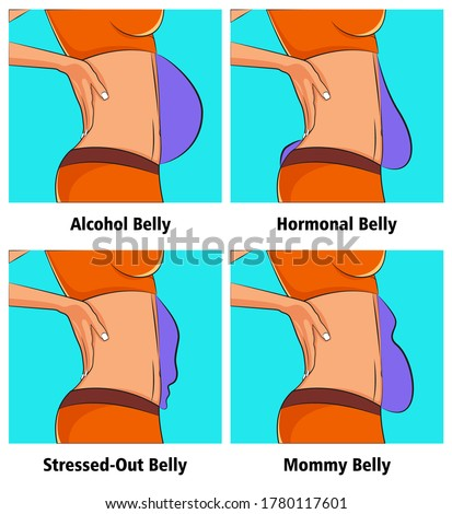 Four Types of Belly Bulges. Illustration about weight and health problem. Belly view from side.
