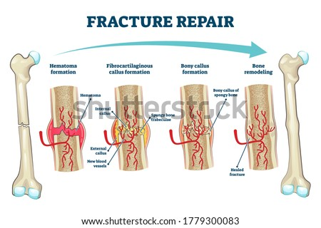 Fracture repair as educational bone remodeling and formation stages vector illustration. Labeled structure and hematoma healing process description from physiology and anatomy aspect. Trauma recovery. Photo stock ©