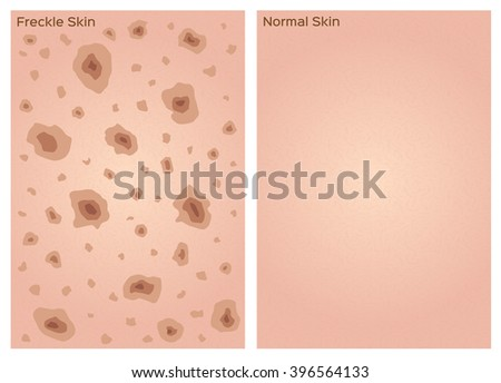 freckle skin texture graphic