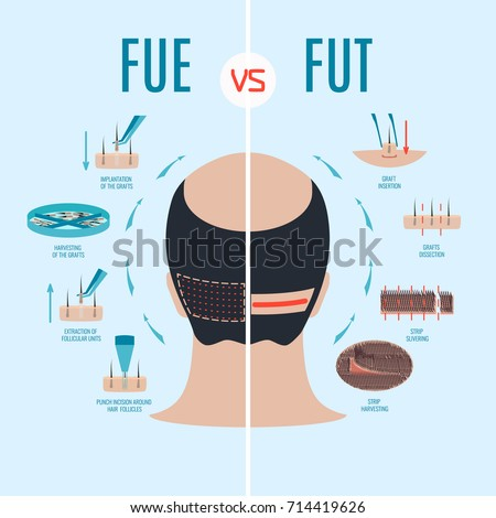 FUE vs FUT. Follicular unit extraction versus follicular unit transplantation. Types of hair transplant procedures and their stages. Male alopecia treatment. Medical infographics. Vector illustration. Stock fotó ©