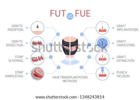 FUE vs FUT medical infographics. Follicular unit extraction versus follicular unit transplantation. Types of hair transplant procedures and their stages. Male alopecia treatment. Vector illustration. Stock fotó ©