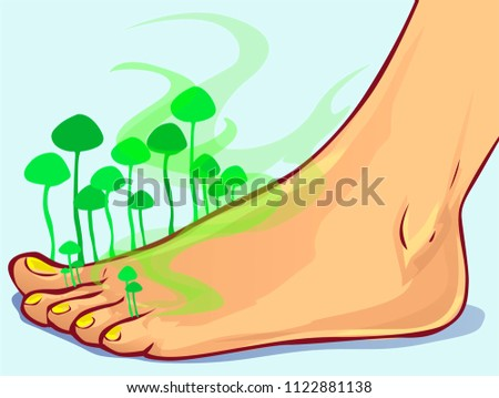 fungal infections  vector