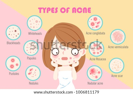 girl with types of acne on the