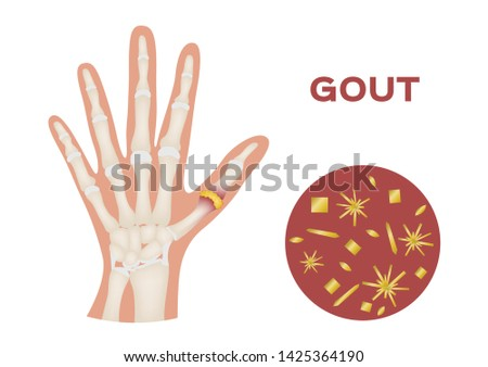 gout in human hand vector / human, anatomy
