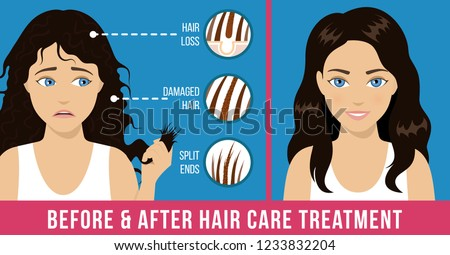 Hair care. Common problems - split ends, damaged hair, hair loss. Before and after care treatment. Vector