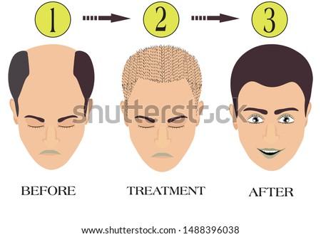 Hair loss before, after, baldness, baldness, baldness, hair treatment