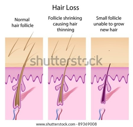 Hair loss process - stock vector
