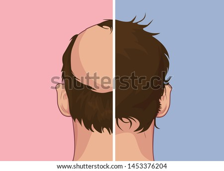 Hair loss. Stages of alopecia man problem vector medical