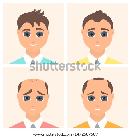 Hair loss stages set of four steps. Front view of a man losing hair. Male alopecia pattern. Medical infographics. Health and beauty concept. Vector illustration made in cartoon style.