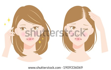hair parting thinning woman