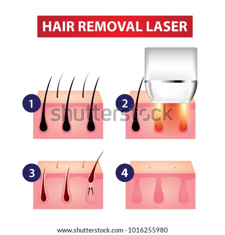 Hair removal laser step vector illustration