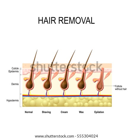 epilation free vector art (19 free downloads)stock vector hair removal with wax cream epilation