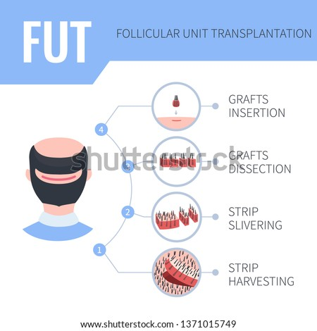 Hair transplantation alopecia treatment by FUT in men. 4 steps infographics. Stages of follicular unit transplantation restoration surgery for male patients. Vector template for clinics. Stock fotó ©
