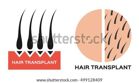 hair transplantation icon logo