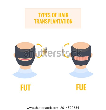 Hair transplantation infographics of man heads in rear view. FUT and FUE male alopecia treatment methods. Follicular unit extraction versus follicular unit transplantation. Medical vector illustration Stock fotó ©