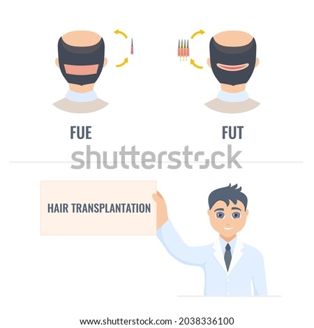 Hair transplantation placard in hands of a man doctor. FUT and FUE male alopecia treatment infographics. Follicular unit extraction vs follicular unit transplantation. Medical vector illustration. Stock fotó ©