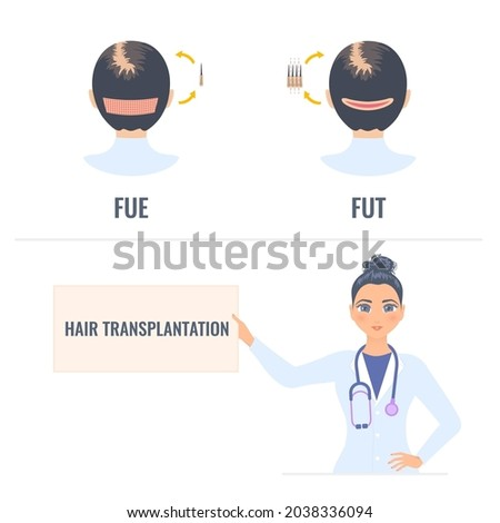 Hair transplantation placard in hands of a woman doctor. FUT and FUE female alopecia treatment infographics. Follicular unit extraction vs follicular unit transplantation. Medical vector illustration. Stock fotó ©