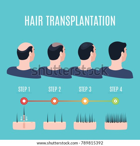 Hair transplantation surgery steps infographics. Patient before and after the procedure. Male hair loss treatment with FUT, FUE method. Alopecia medical design for clinics and diagnostic centers.