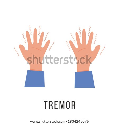 Hands with tremor symptom. Parkinson disease. Trembling or Shivering arms. Physiological stress symptoms. Mental disorders, panic, fear. Vector illustration in flat cartoon style. Stock photo ©